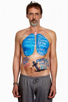 Hvad siger statistikken om lungekræft?